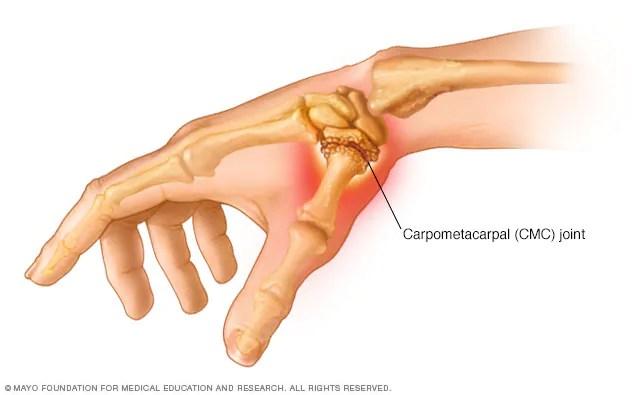 Thumb Arthritis Symptoms And Causes Mayo Clinic