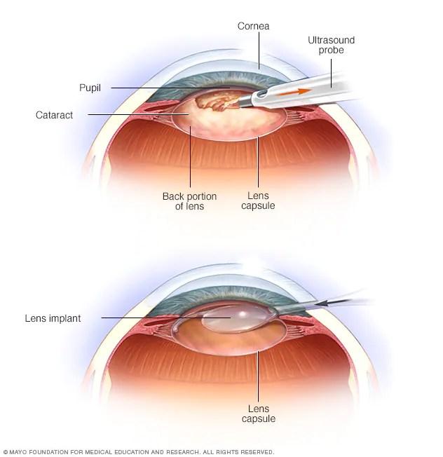 Cataract surgery - Mayo Clinic