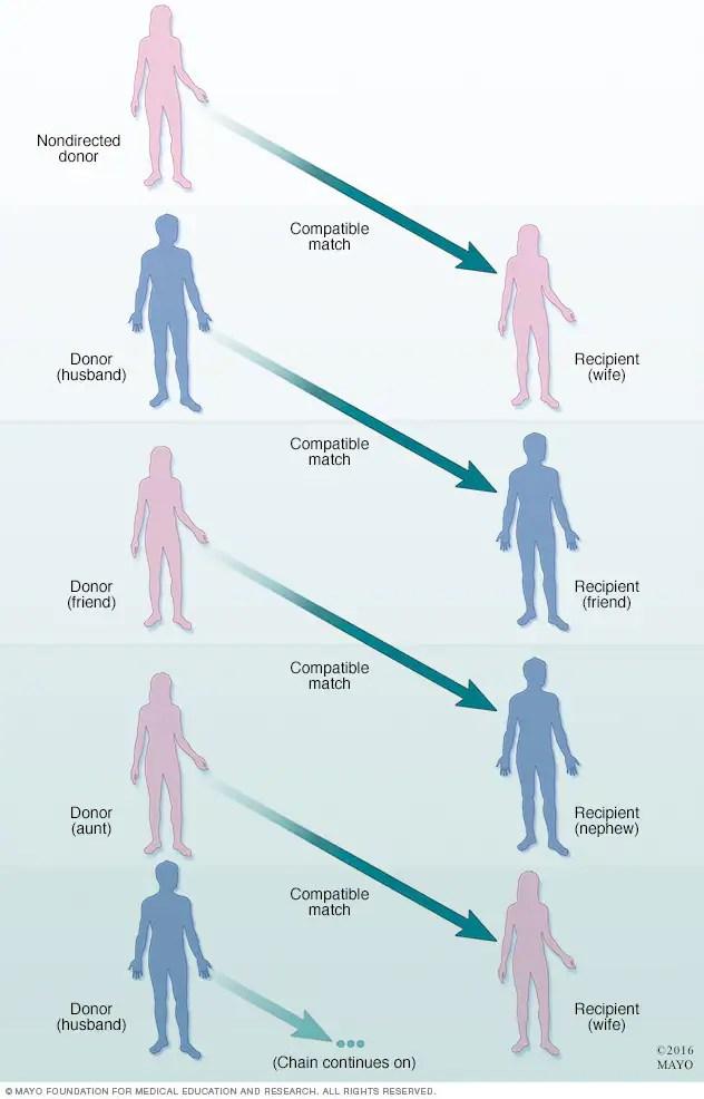 Kidney transplant - Mayo Clinic