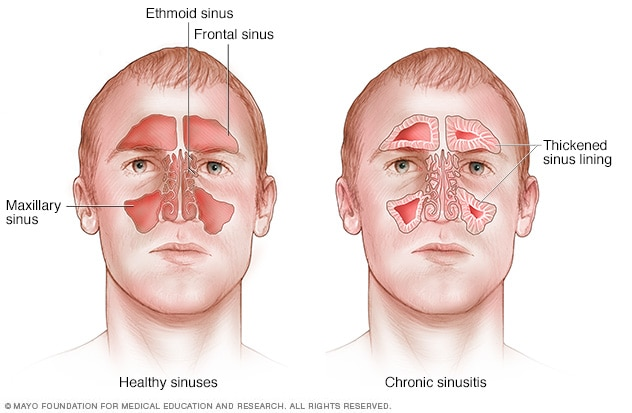 Chronic sinusitis - Symptoms and causes - Mayo Clinic