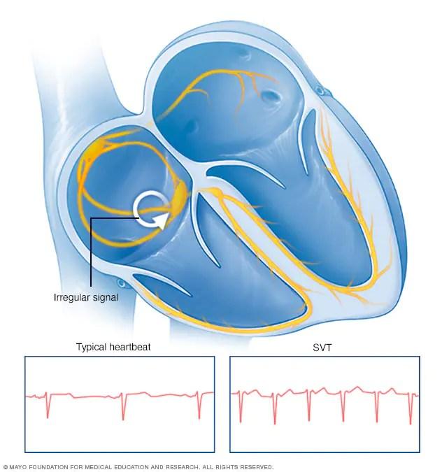 Atrioventricular nodal reentry tachycardia (AVNRT) - Overview - Mayo