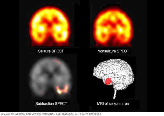 Grand mal seizure - Diagnosis and treatment - Mayo Clinic