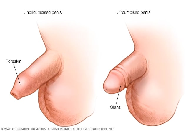 Illustration of penis before and after circumcision