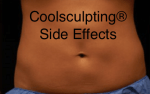 CoolSculpting Side Effects Blog