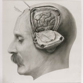 Born-Again Stress and Hippocampal Atrophy