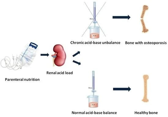 Pharmaceutics Free Full-Text Prediction of Renal Acid Load in