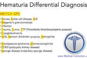 Hematuria Differential Diagnosis Best USMLE Step 2 CS Mnemonics - www.Medical-Institution.com