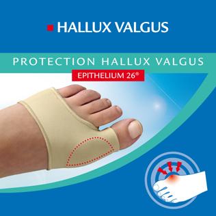 Protection-Hallux-Valgus-oignon