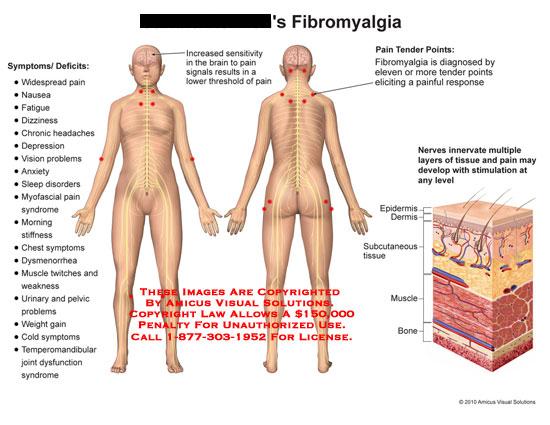 Fibromyalgia Symptoms Tender Points Diagram - Find Wiring Diagram \u2022