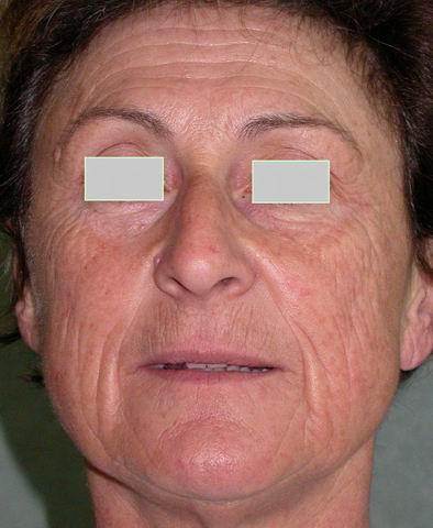 Le masque avec le gingembre pour la personne des taches de pigment