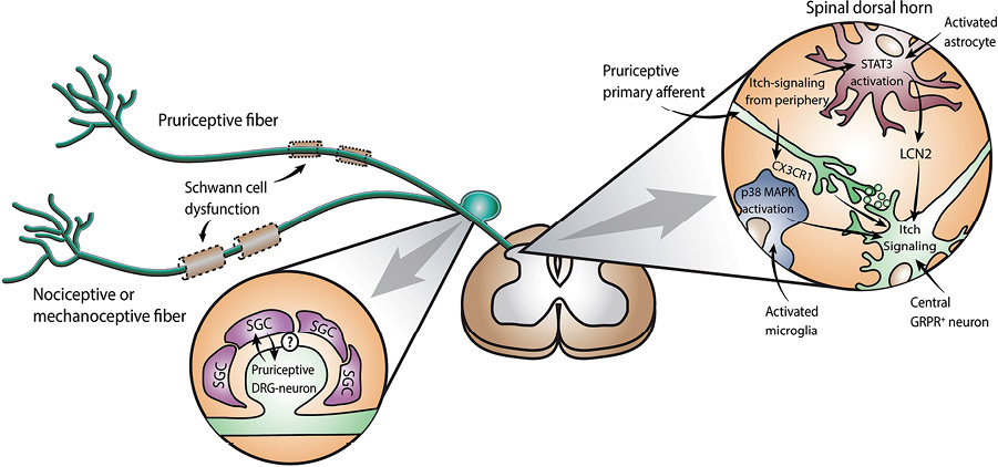 Glial Cells are Involved in Itch Processing HTML Acta Dermato
