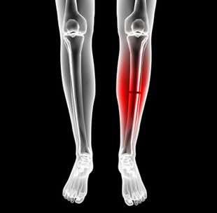 Fracture jambe traitement