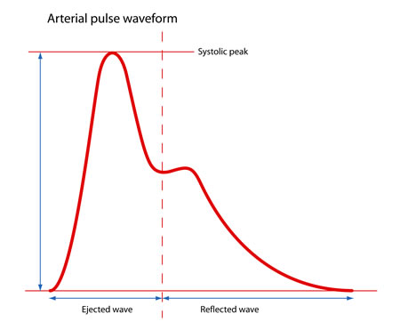 Features of Pulse Waveform - MedTach