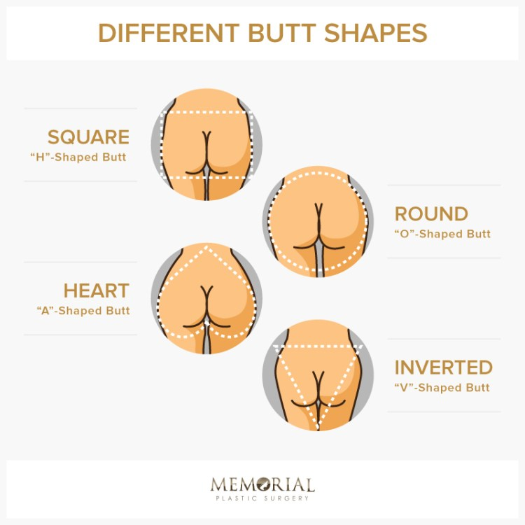 Four different butt shapes by Memorial Plastic Surgery.