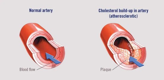 Cholesterol build-up in artery