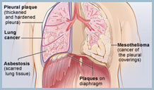 Cure For Mesothelioma Treatment Top Mesothelioma Treatment Options For You Or A Loved One To Increase