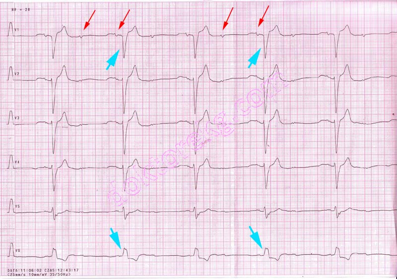 21 second degree atrioventricular (av) block - differentiation of