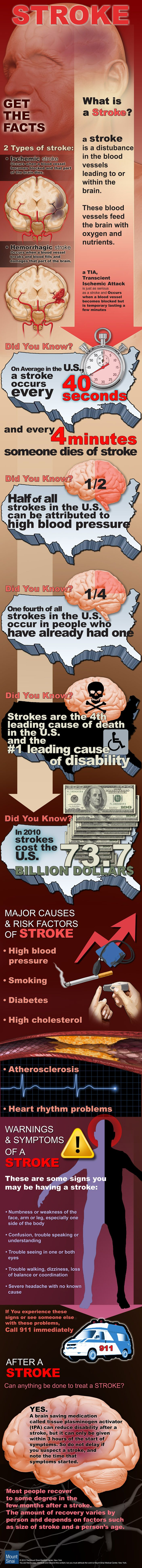 Stroke infographic - Get the Facts