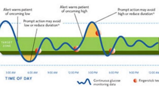 Additional Notes: Dexcom vs Medtronic CGM