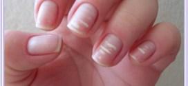 A qué se deben los puntitos blancos de las uñas