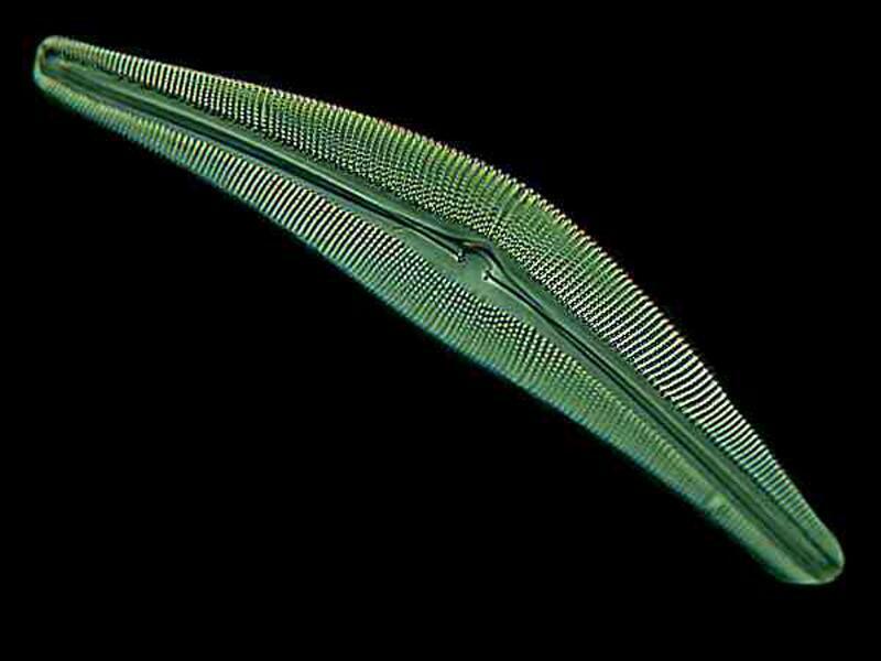 Mic-UK Pickled Plankton, Polychaetes, Platyhelminths, Phoronids - protista examples