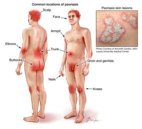 psoriasis otezla