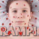 Sarampion2