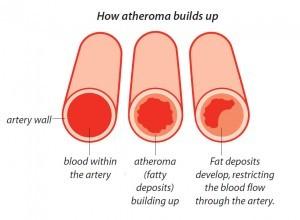 atheroma-300x220