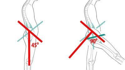 Can tight hip flexors cause pelvic pain gynae