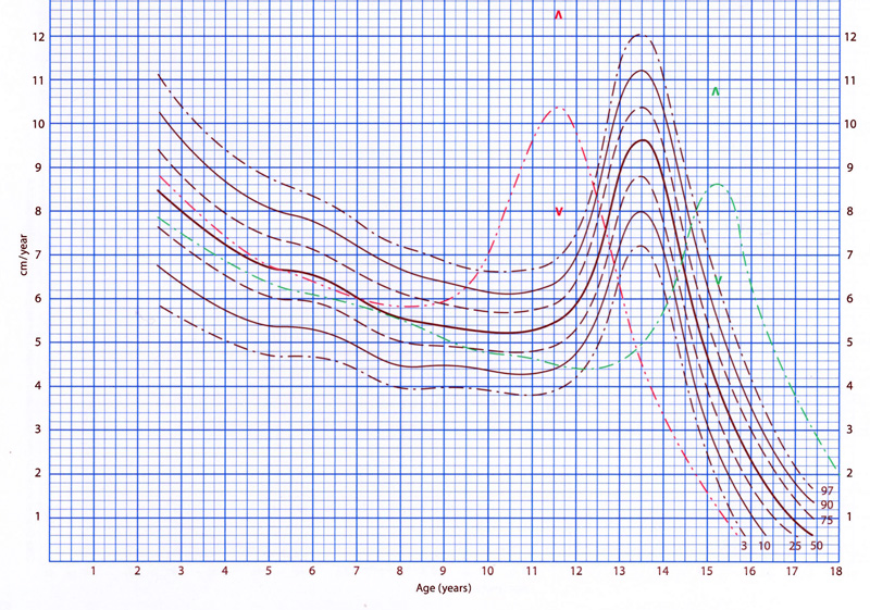Gastroenterology and Clinical Nutrition  Growth charts and calculators - boys growth chart