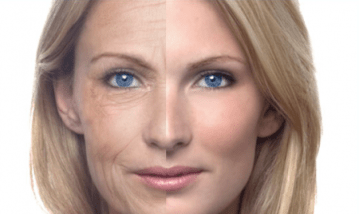 Ringiovanimento facciale