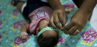 Virus Zika: Naissance du premier bébé atteint de microcéphalie en Europe