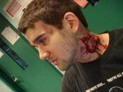 sfx makeup, special effects make up, horror, gore, trauma, wounds, zombie, bitten, blood, walking dead