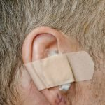 My Ear Right After Surgery