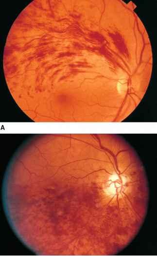 Roth Spot Fundus Photos - Physical Diagnosis