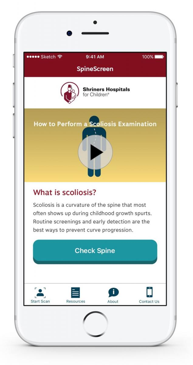 Shriner\u0027s Hospital for Children launches app to spot signs of