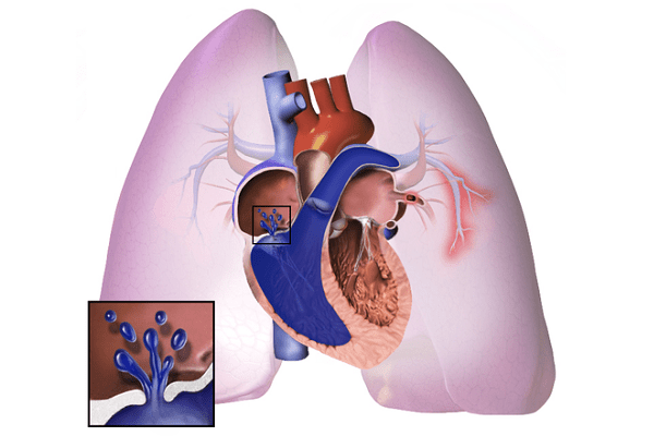 Pulmonary Arterial Hypertension (PAH) Treatment Market