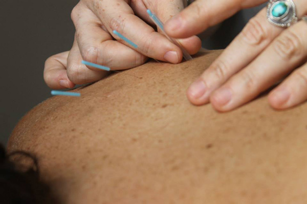 acupuncture student to new practitioner follow up interview  from acupuncture student to new acupuncturist a followup interview danielle dupell