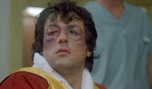 How To Cure A Black Eye Rocky Balboa