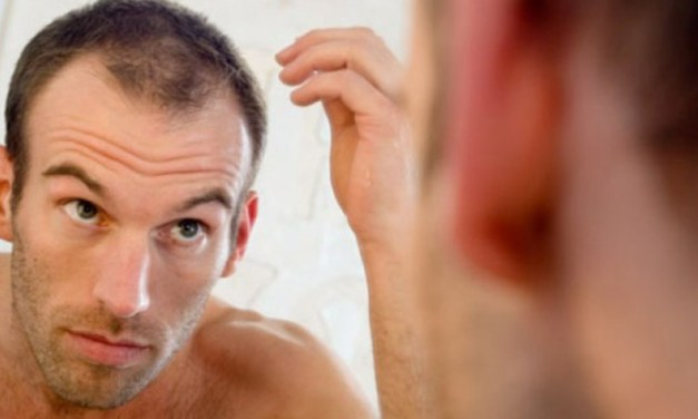 7 Hairstyle Tips for Guys With Thinning Hair