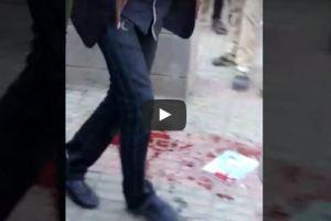 بالفيديو.. طالب يفجر قنبلة داخل المدرسة بالخطأ وأنباء عن 13 قتيل وجريح بصنعاء