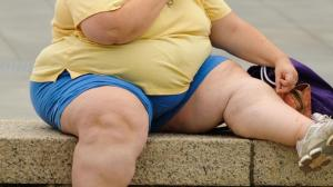 Obesity 04