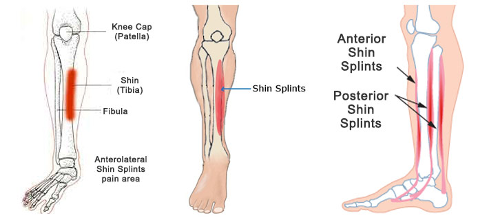 Shin Splints Physical Therapy Get Better Faster Movement Rx