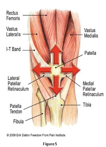Patellofemoral Pain Syndrome - Get Better, Faster   Movement Rx