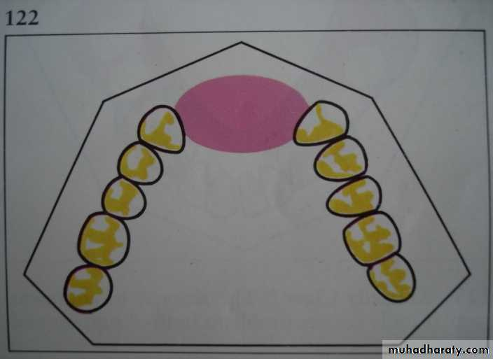 Partial denture pptx - DrNashwa - Muhadharaty