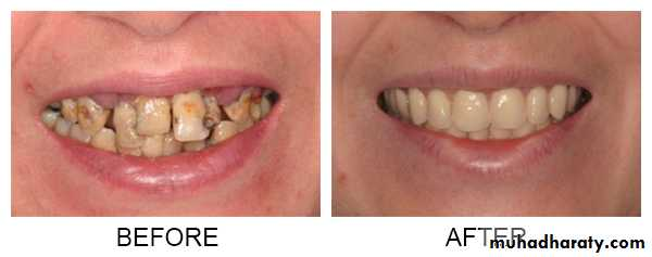 Immediate Denture pptx - درضوان - Muhadharaty