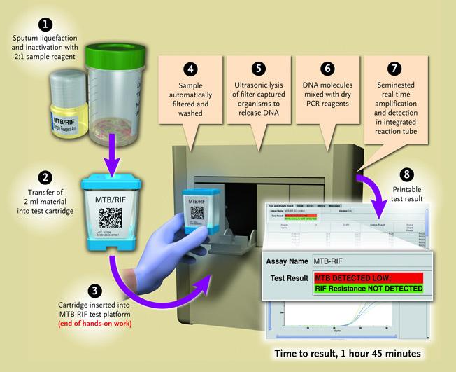 Diagnosing Tuberculosis