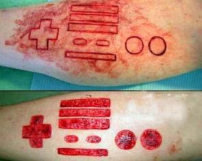 Nintendo scar