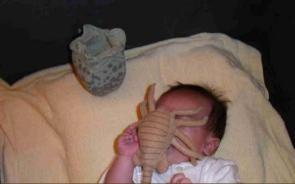 Baby Face Hugger