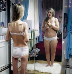 Anorexia Perceptions